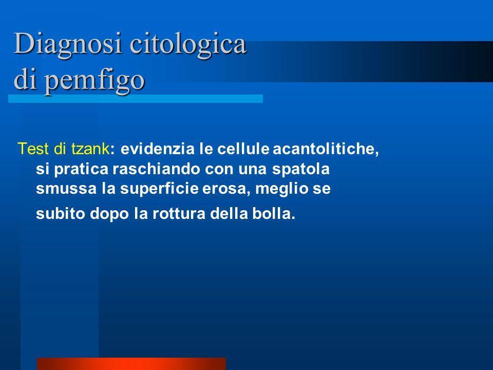 Diagnosi citologica di pemfigo