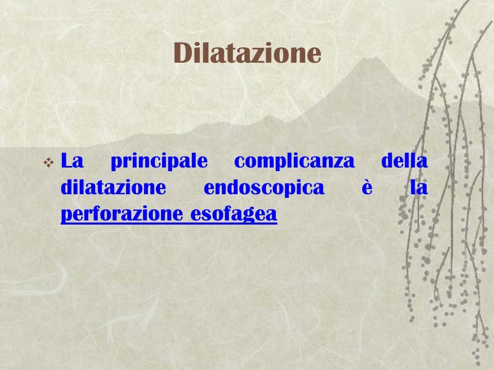 Dilatazione La principale complicanza della dilatazione endoscopica è la perforazione esofagea