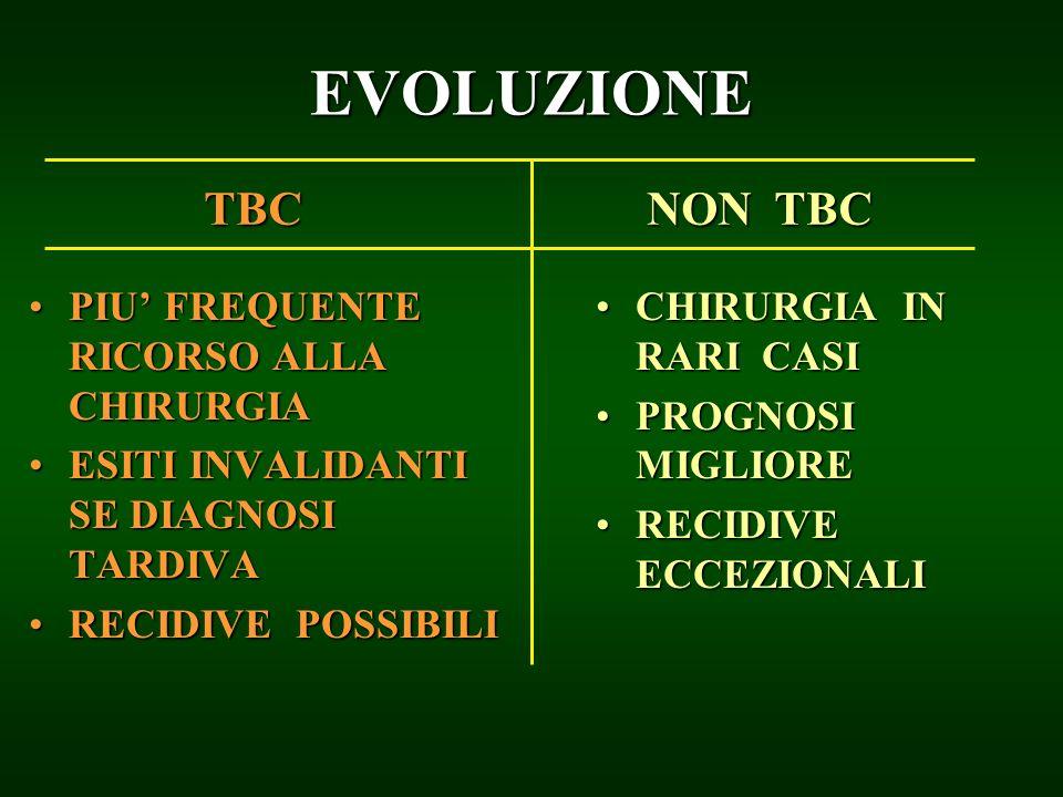 EVOLUZIONE TBC NON TBC PIU' FREQUENTE RICORSO ALLA CHIRURGIA