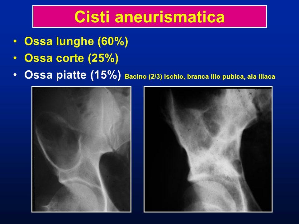 Cisti aneurismatica Ossa lunghe (60%) Ossa corte (25%)