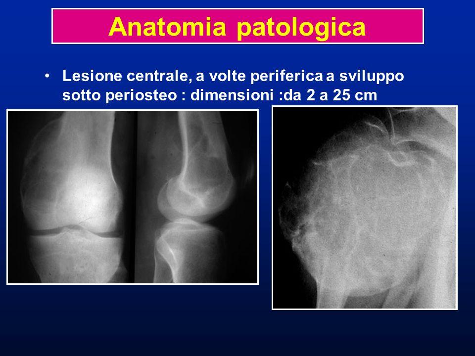Anatomia patologicaLesione centrale, a volte periferica a sviluppo sotto periosteo : dimensioni :da 2 a 25 cm.