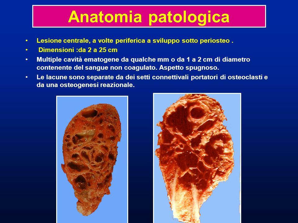 Anatomia patologicaLesione centrale, a volte periferica a sviluppo sotto periosteo . Dimensioni :da 2 a 25 cm.