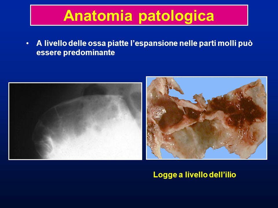 Anatomia patologicaA livello delle ossa piatte l'espansione nelle parti molli può essere predominante.