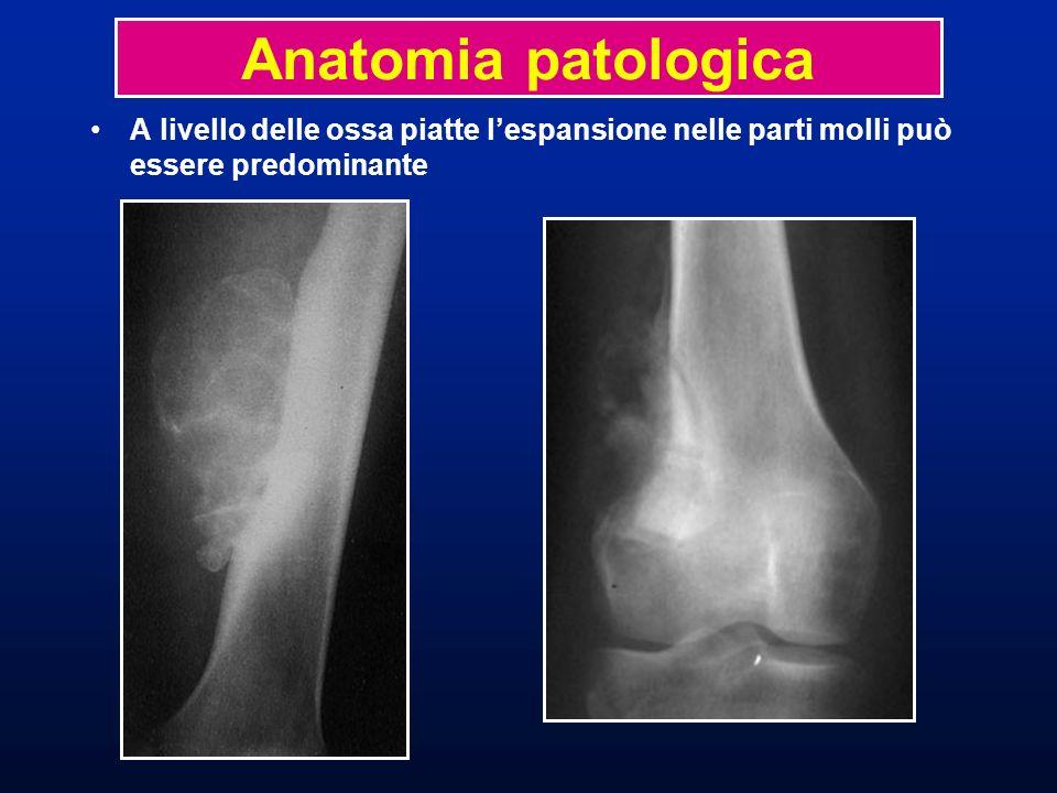 Anatomia patologica A livello delle ossa piatte l'espansione nelle parti molli può essere predominante.