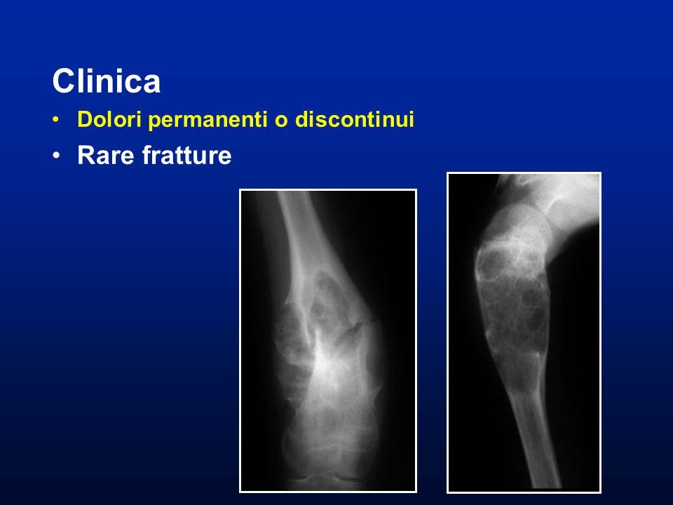 Clinica Dolori permanenti o discontinui Rare fratture
