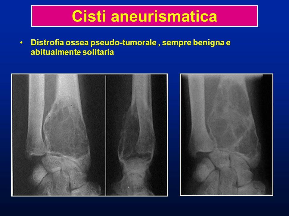 Cisti aneurismatica Distrofia ossea pseudo-tumorale , sempre benigna e abitualmente solitaria