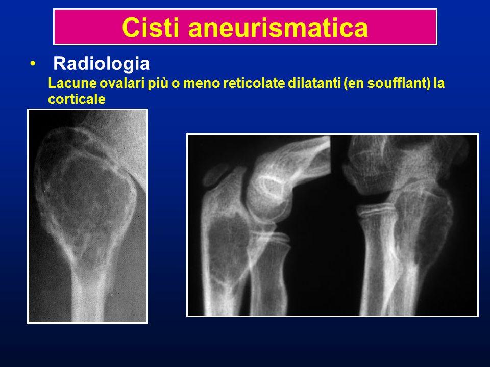 Cisti aneurismatica Radiologia Lacune ovalari più o meno reticolate dilatanti (en soufflant) la corticale.