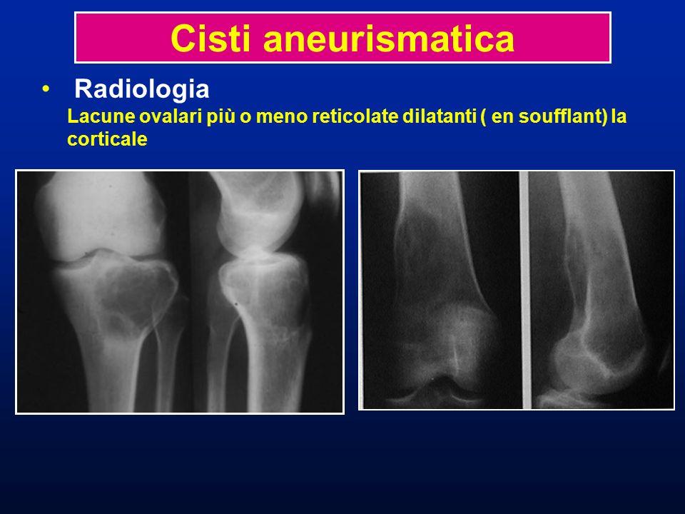 Cisti aneurismatica Radiologia Lacune ovalari più o meno reticolate dilatanti ( en soufflant) la corticale.