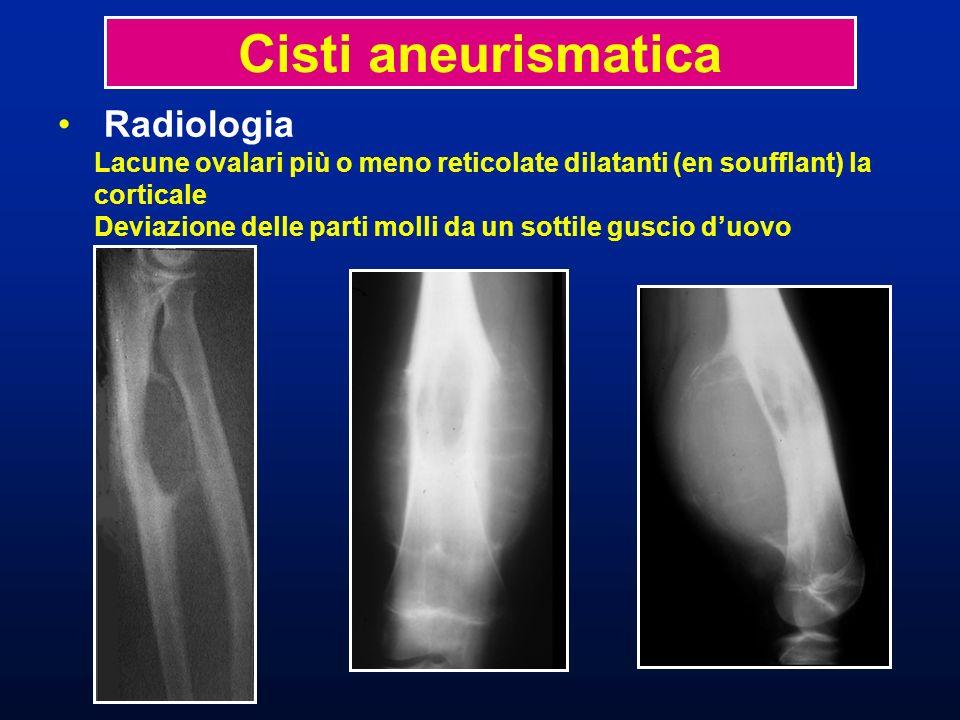 Cisti aneurismatica