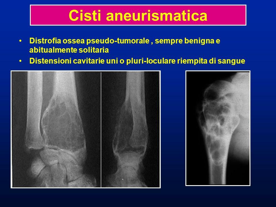 Cisti aneurismatica Distrofia ossea pseudo-tumorale , sempre benigna e abitualmente solitaria.
