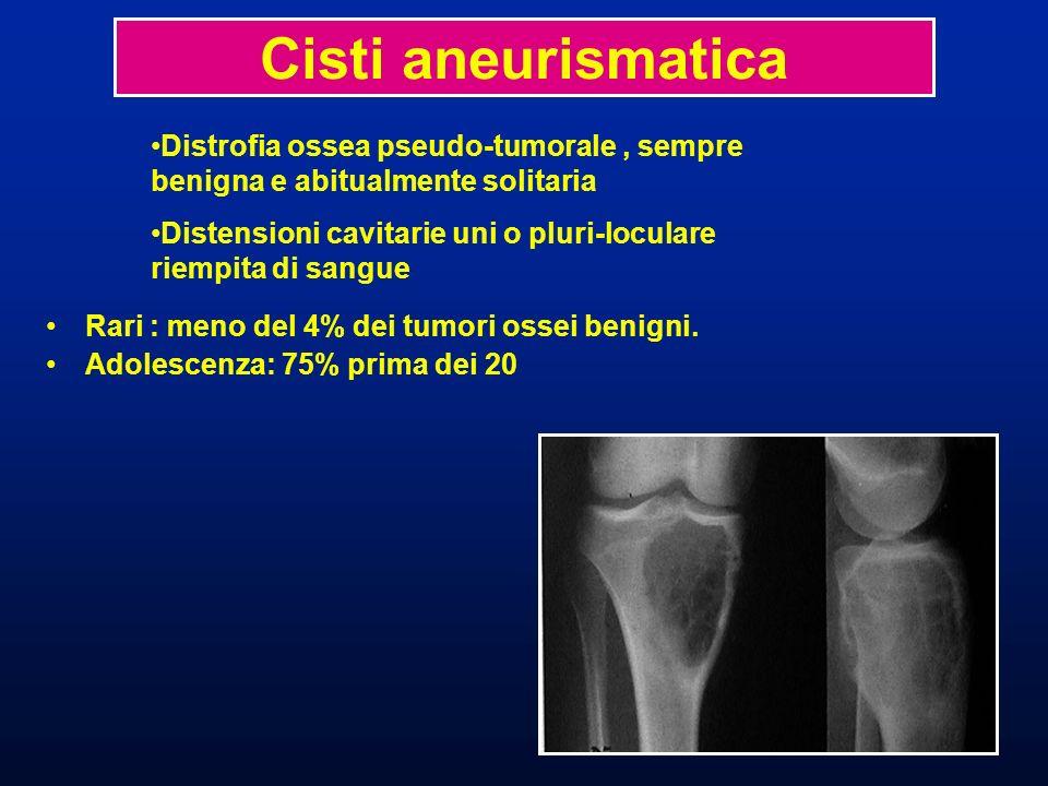Cisti aneurismatica Rari : meno del 4% dei tumori ossei benigni. Adolescenza: 75% prima dei 20.