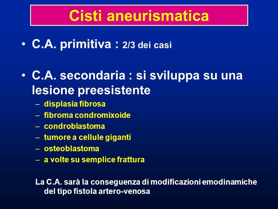 Cisti aneurismatica C.A. primitiva : 2/3 dei casi
