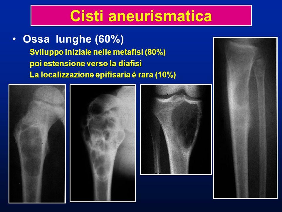Cisti aneurismatica Ossa lunghe (60%)