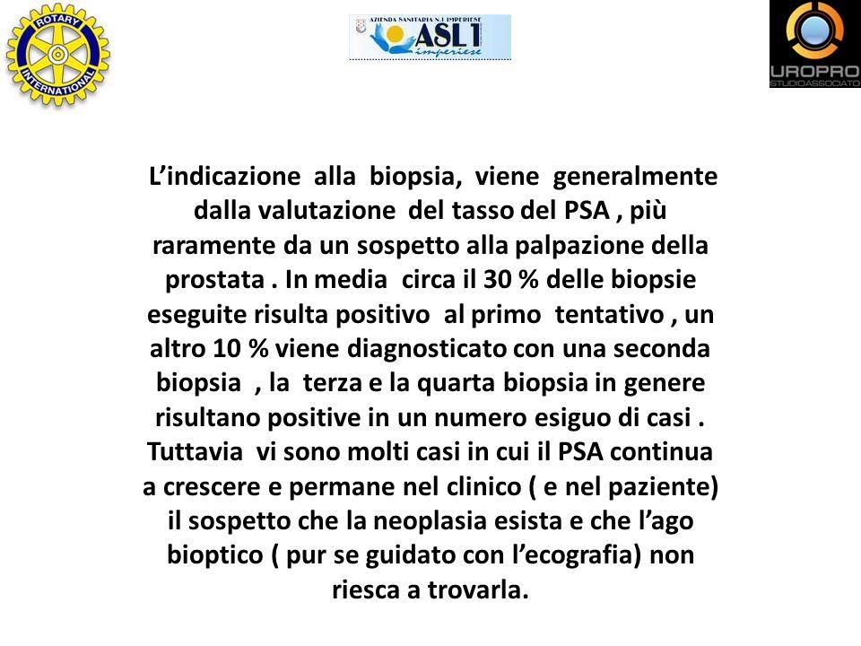 L'indicazione alla biopsia, viene generalmente dalla valutazione del tasso del PSA , più raramente da un sospetto alla palpazione della prostata .