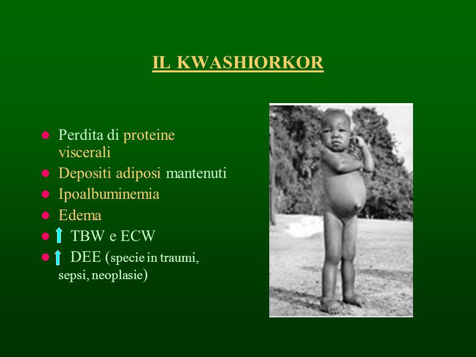 IL KWASHIORKOR Perdita di proteine viscerali