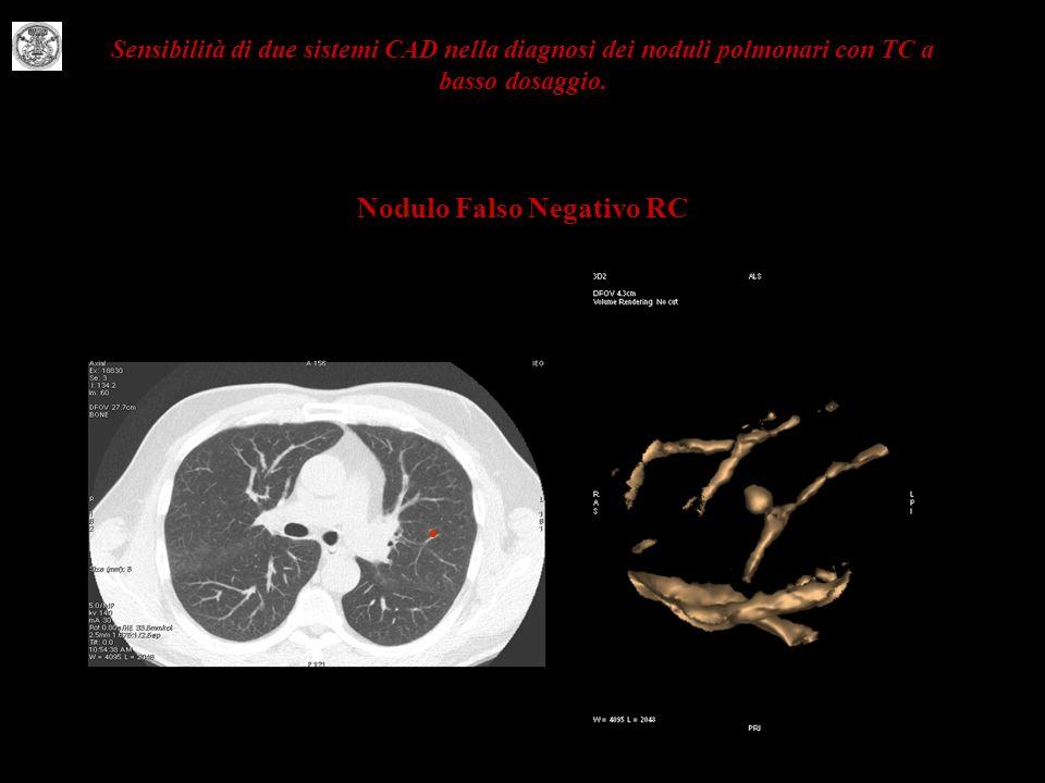 Sensibilità di due sistemi CAD nella diagnosi dei noduli polmonari con TC a basso dosaggio.
