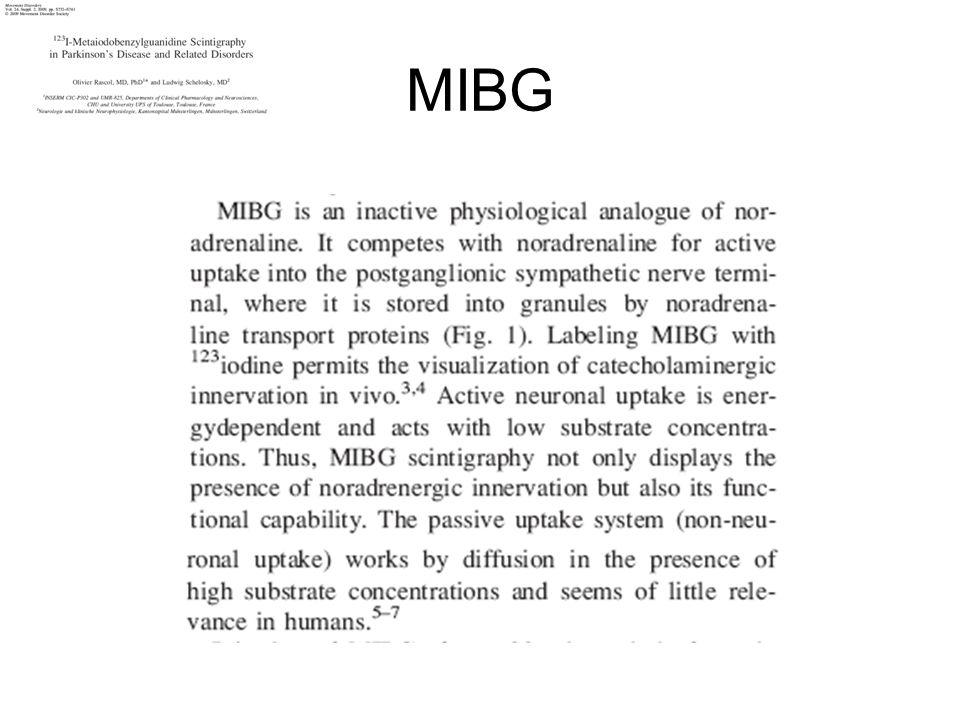 MIBG 4