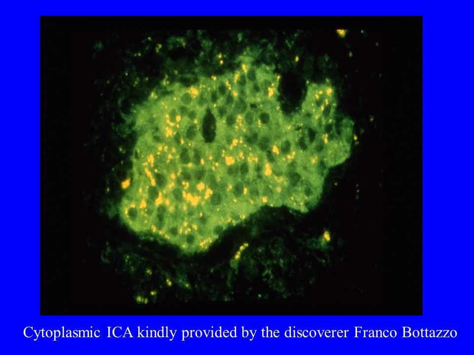 Cytoplasmic ICA kindly provided by the discoverer Franco Bottazzo