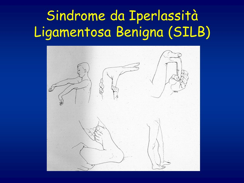 Sindrome da Iperlassità Ligamentosa Benigna (SILB)