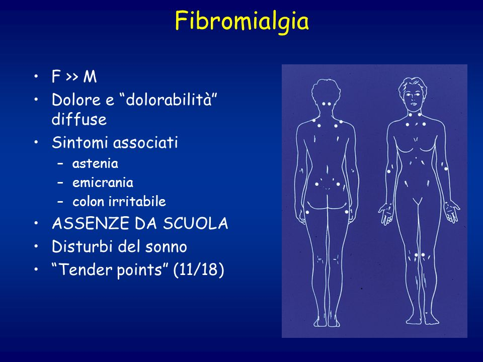 Fibromialgia F >> M Dolore e dolorabilità diffuse
