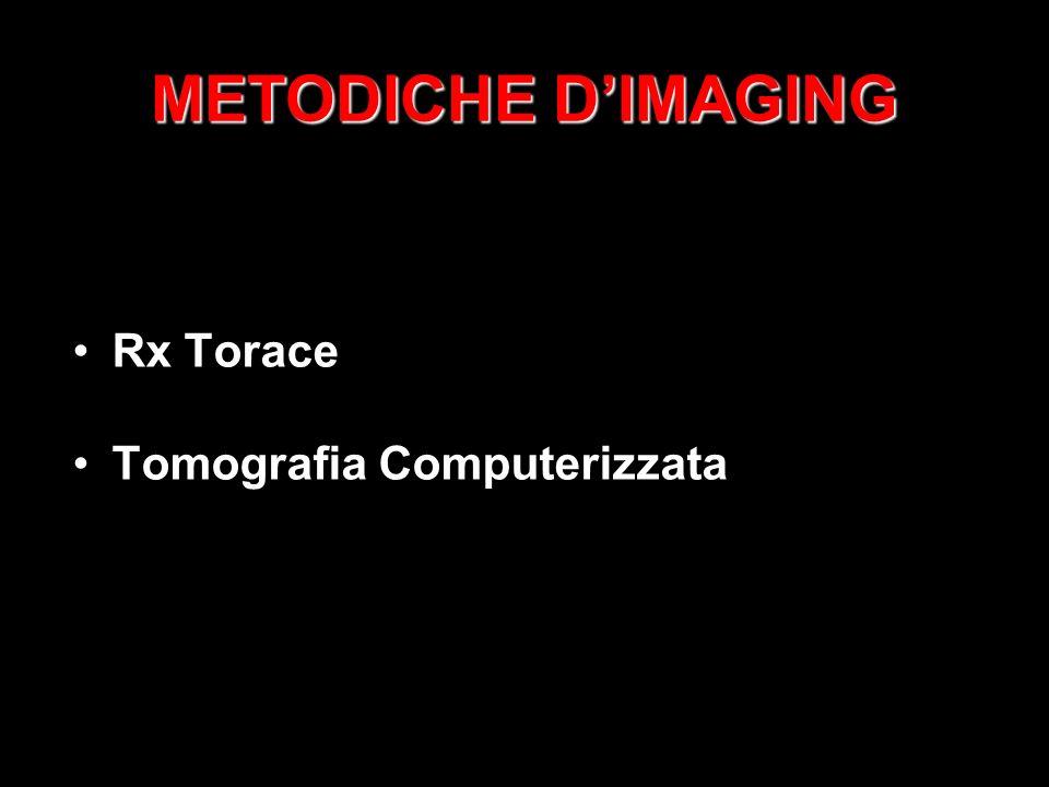 METODICHE D'IMAGING Rx Torace Tomografia Computerizzata