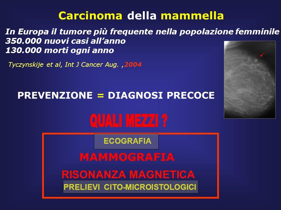 Carcinoma della mammella