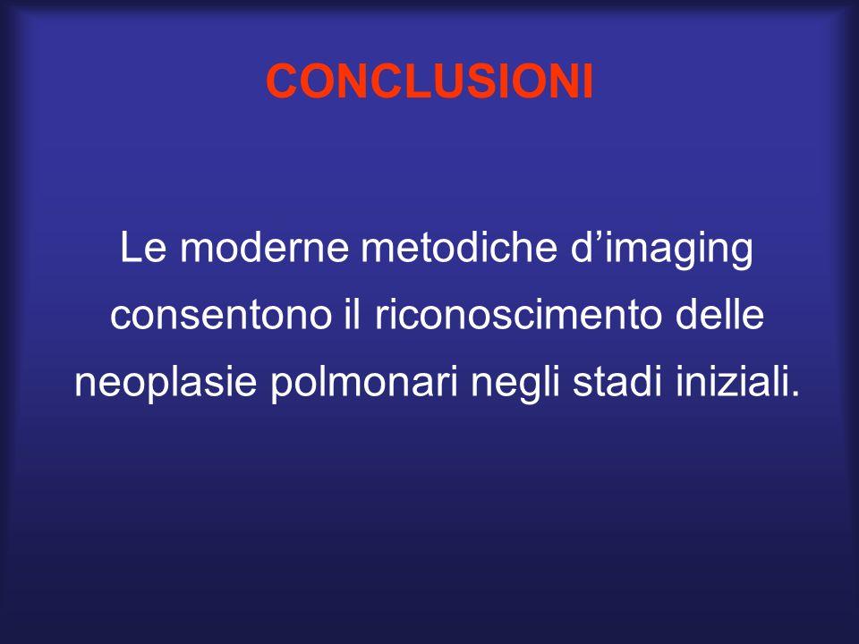CONCLUSIONI Le moderne metodiche d'imaging consentono il riconoscimento delle neoplasie polmonari negli stadi iniziali.