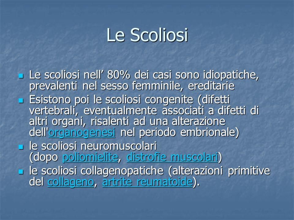 Le Scoliosi Le scoliosi nell' 80% dei casi sono idiopatiche, prevalenti nel sesso femminile, ereditarie.