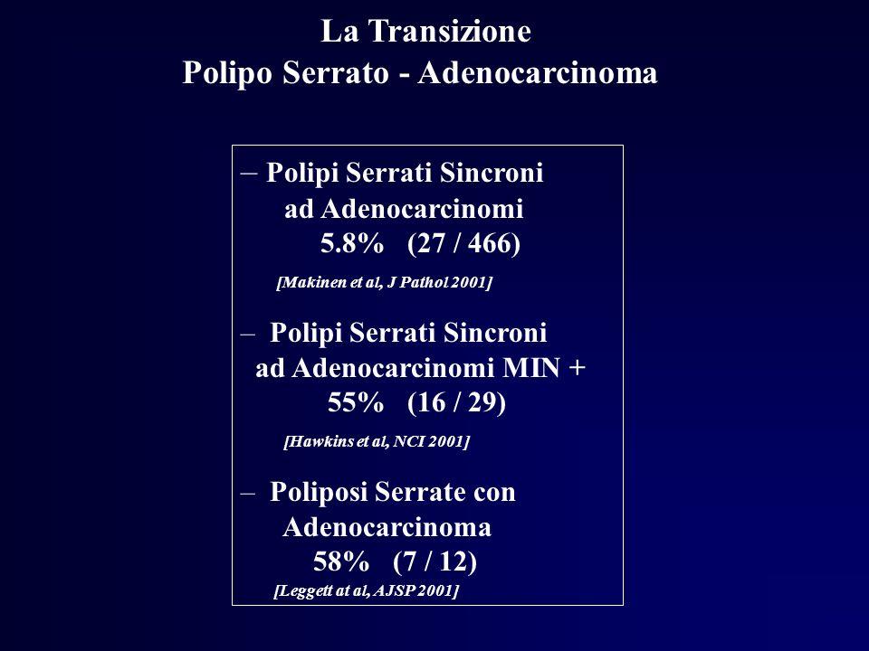 Polipo Serrato - Adenocarcinoma