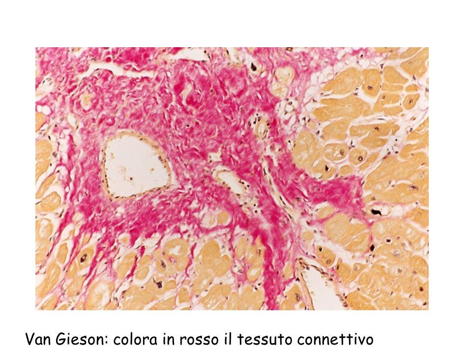 Van Gieson: colora in rosso il tessuto connettivo