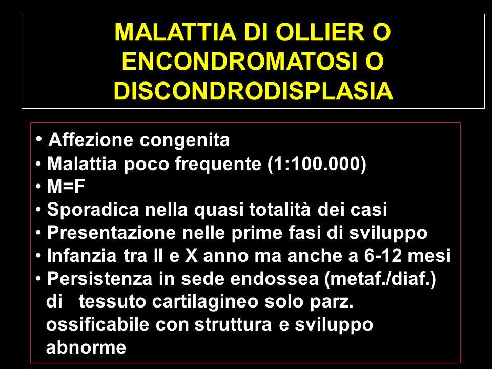 MALATTIA DI OLLIER O ENCONDROMATOSI O DISCONDRODISPLASIA