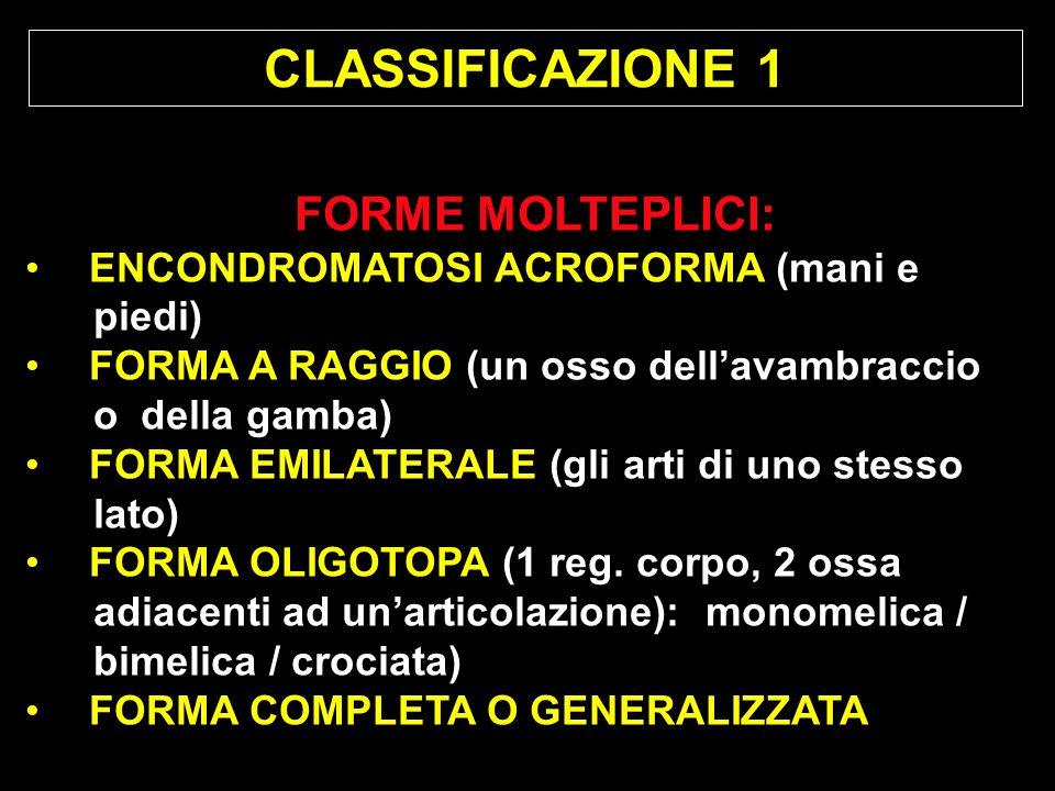 CLASSIFICAZIONE 1 FORME MOLTEPLICI: ENCONDROMATOSI ACROFORMA (mani e