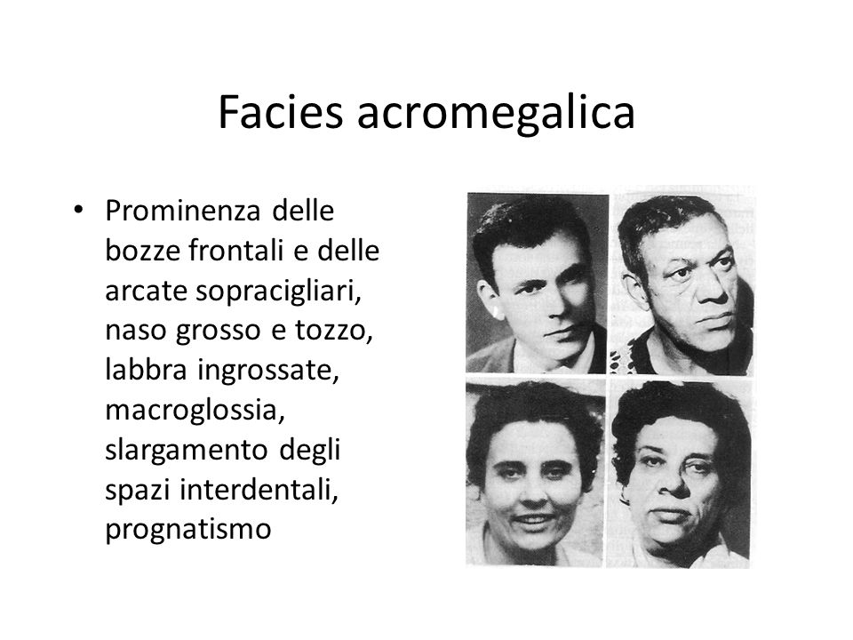 Facies acromegalica