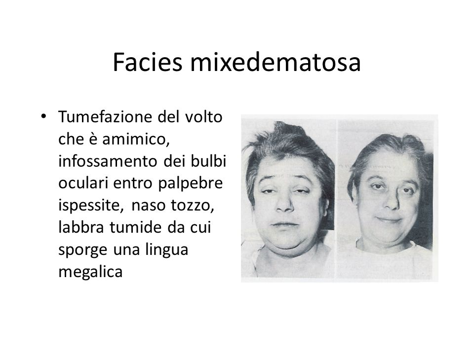 Facies mixedematosa