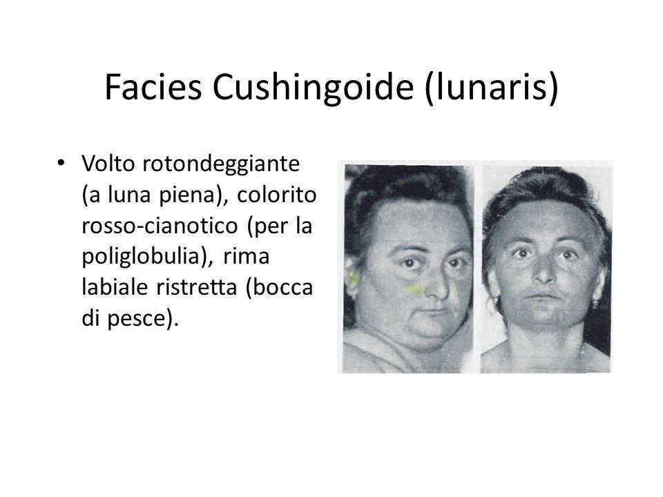 Facies Cushingoide (lunaris)