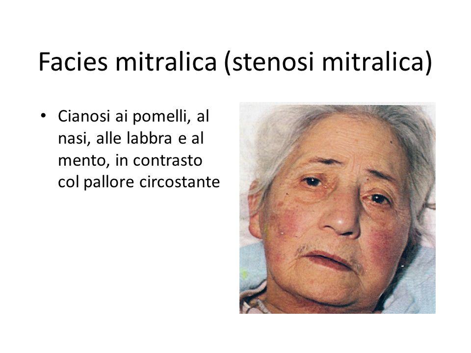 Facies mitralica (stenosi mitralica)