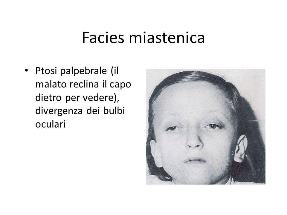 Facies miastenica Ptosi palpebrale (il malato reclina il capo dietro per vedere), divergenza dei bulbi oculari.