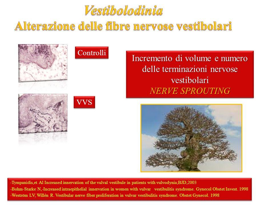 Alterazione delle fibre nervose vestibolari