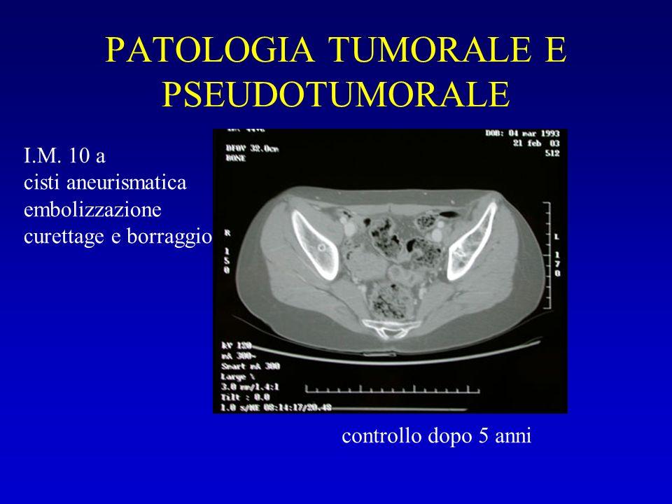 PATOLOGIA TUMORALE E PSEUDOTUMORALE
