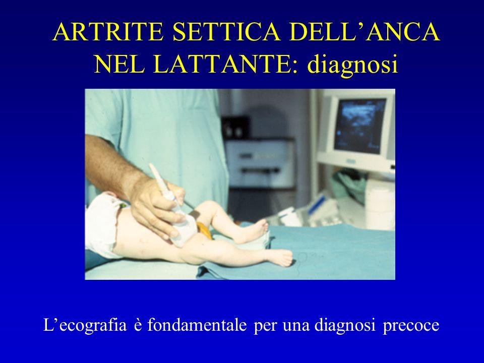 ARTRITE SETTICA DELL'ANCA NEL LATTANTE: diagnosi
