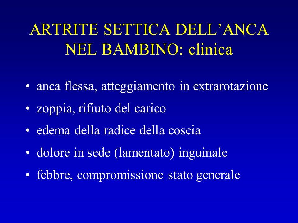 ARTRITE SETTICA DELL'ANCA NEL BAMBINO: clinica