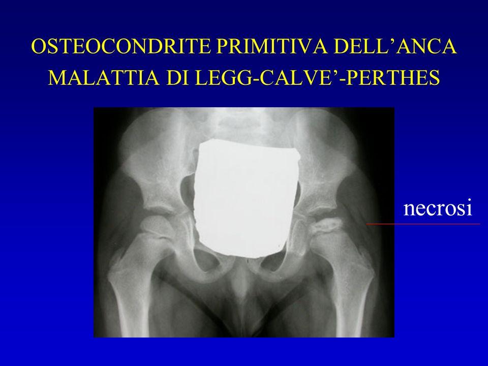 OSTEOCONDRITE PRIMITIVA DELL'ANCA MALATTIA DI LEGG-CALVE'-PERTHES