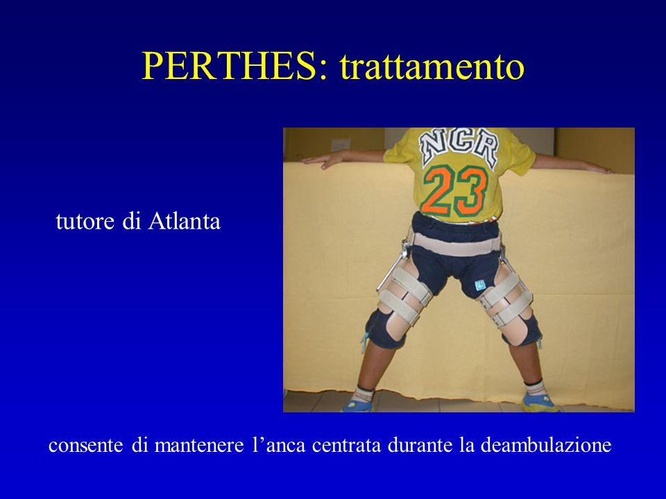 PERTHES: trattamento tutore di Atlanta