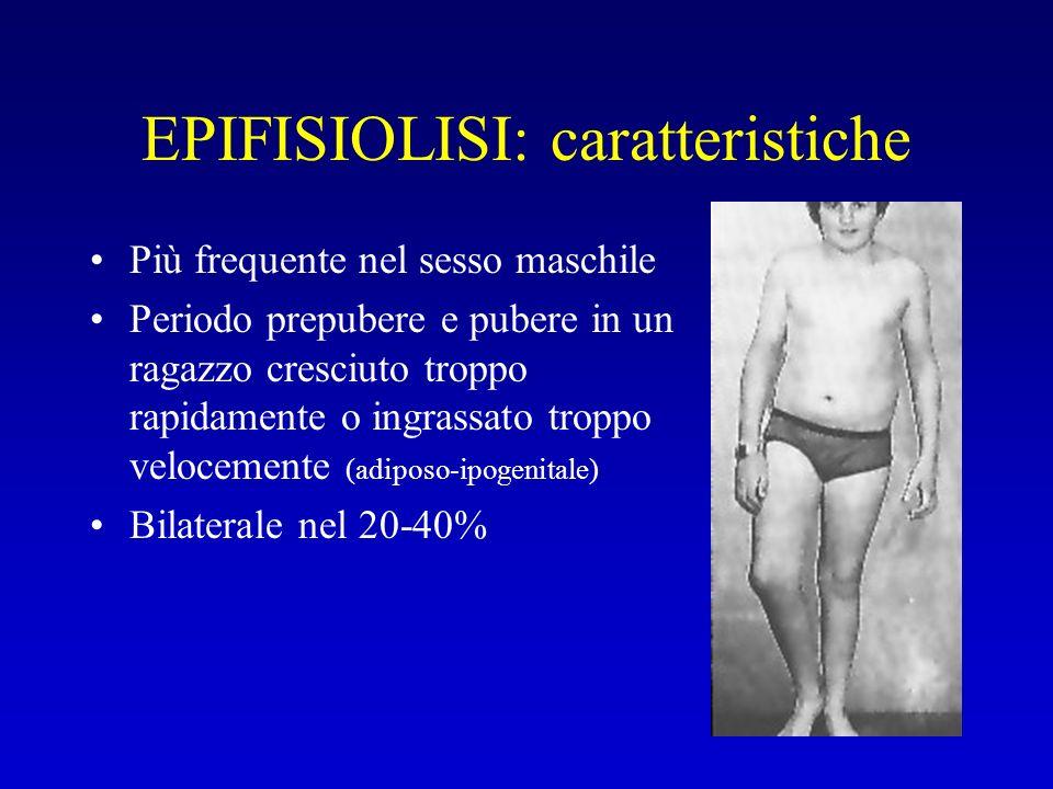 EPIFISIOLISI: caratteristiche