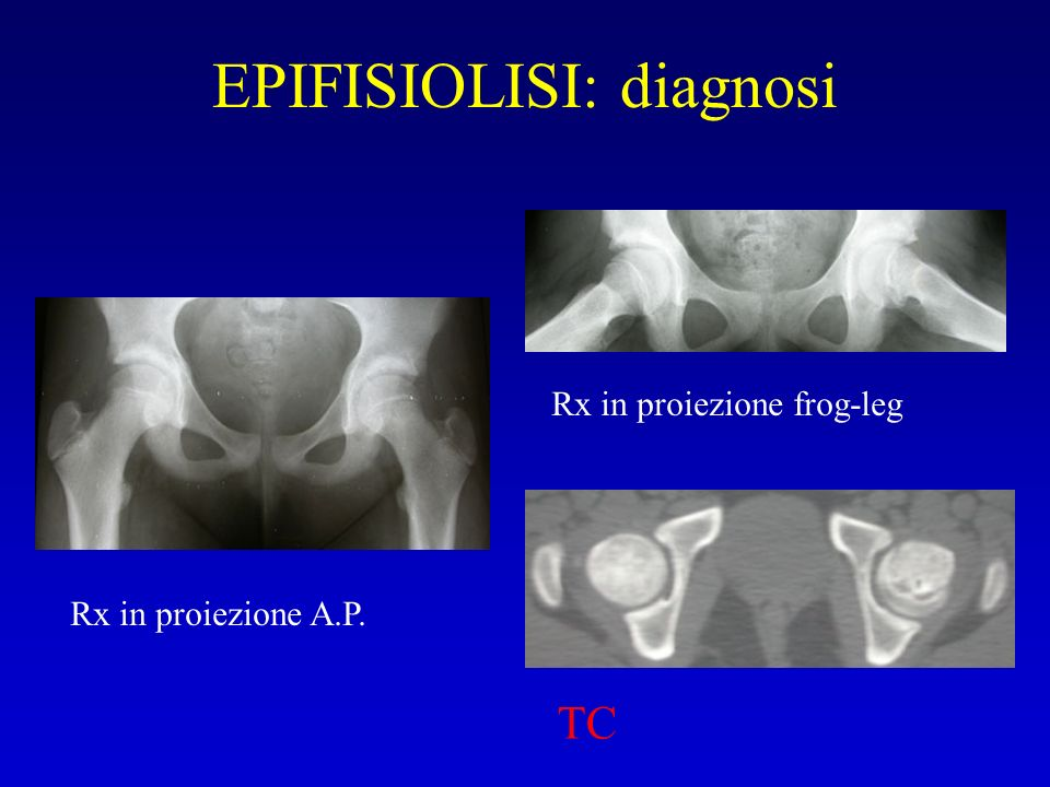 EPIFISIOLISI: diagnosi