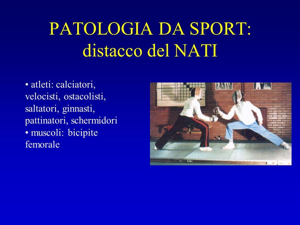 PATOLOGIA DA SPORT: distacco del NATI
