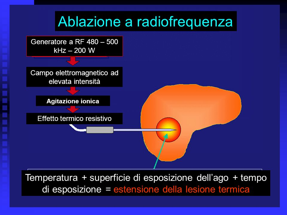 Ablazione a radiofrequenza