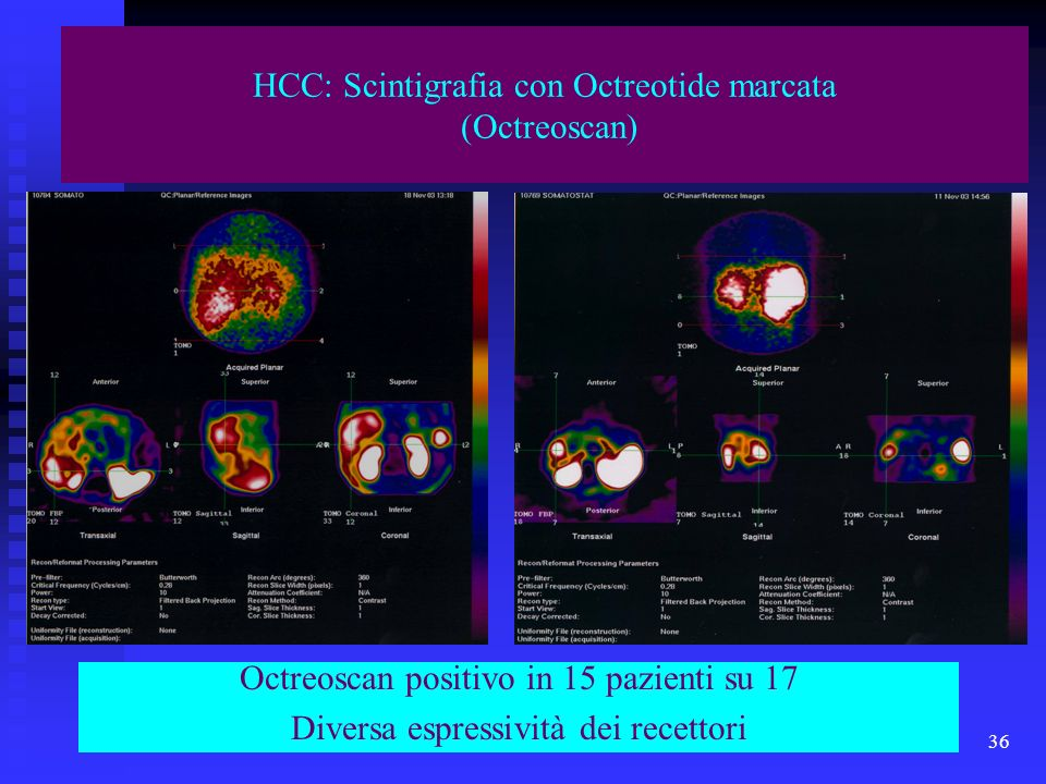HCC: Scintigrafia con Octreotide marcata (Octreoscan)