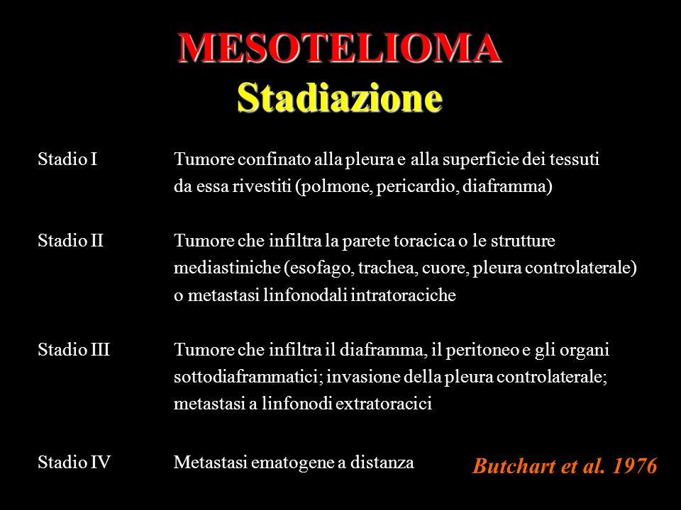 MESOTELIOMA Stadiazione