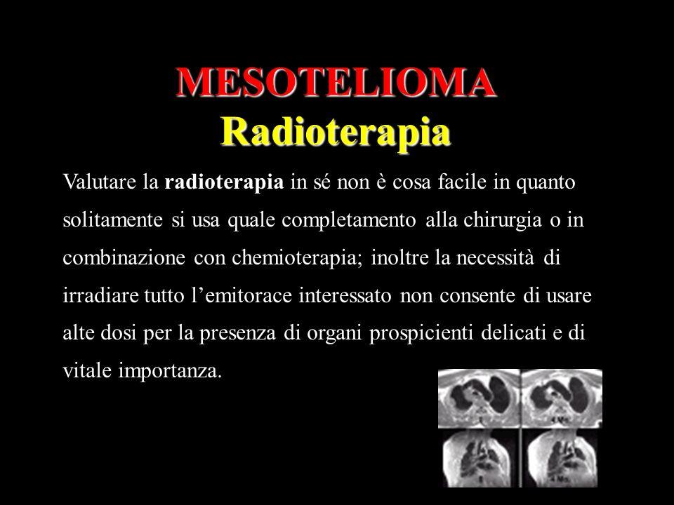 MESOTELIOMA Radioterapia